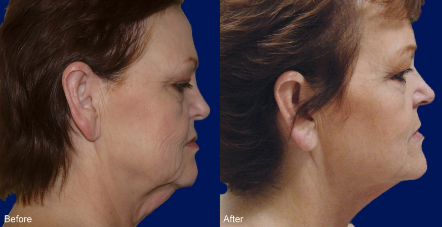 LaserFacelift-before-and-after