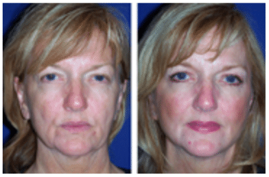 One Hour Facelift Before and After