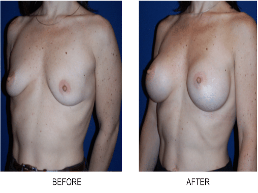 Maryland Breast Augmentation Surgeon Bethesda /
